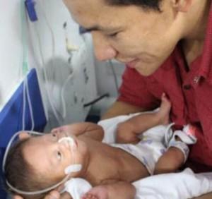 Bebé milagro Bucaramanga (ft img)